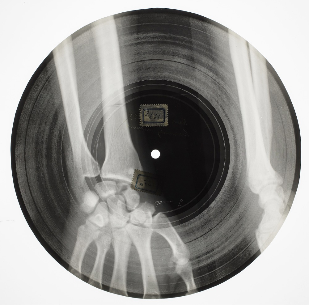 Bone Music: Forbidden Soviet Records Made From Used X-Ray Films