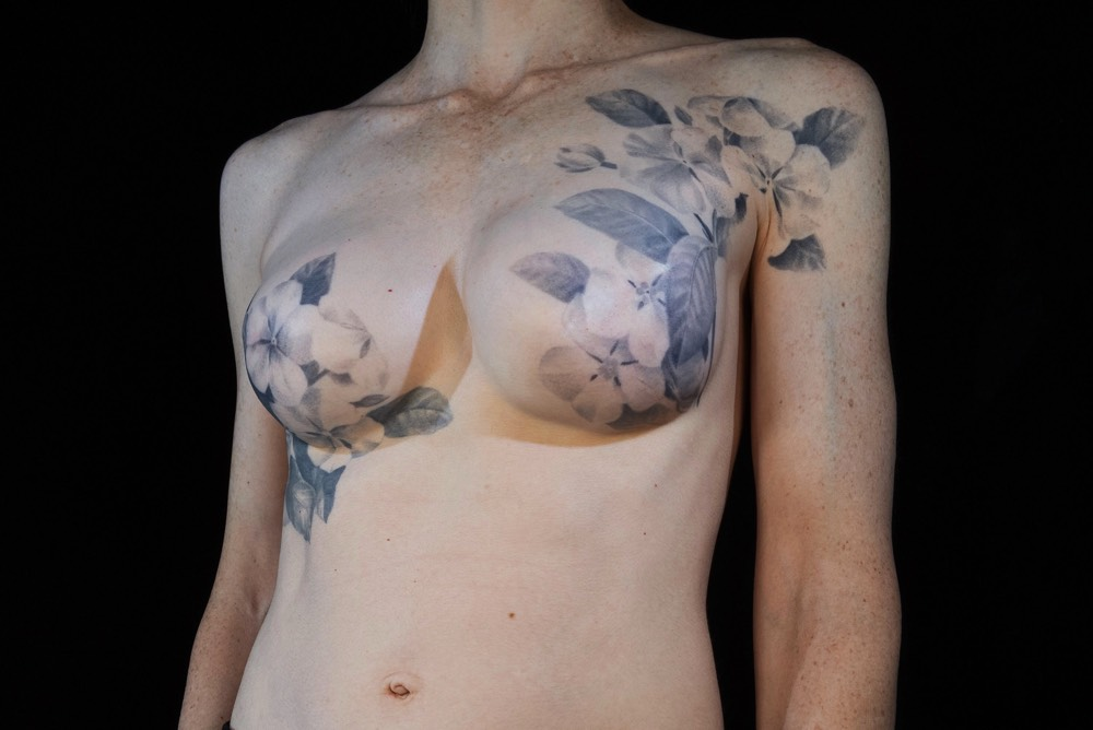 Postmastectomy Tattooing Helps Women with Breast Cancer Heal